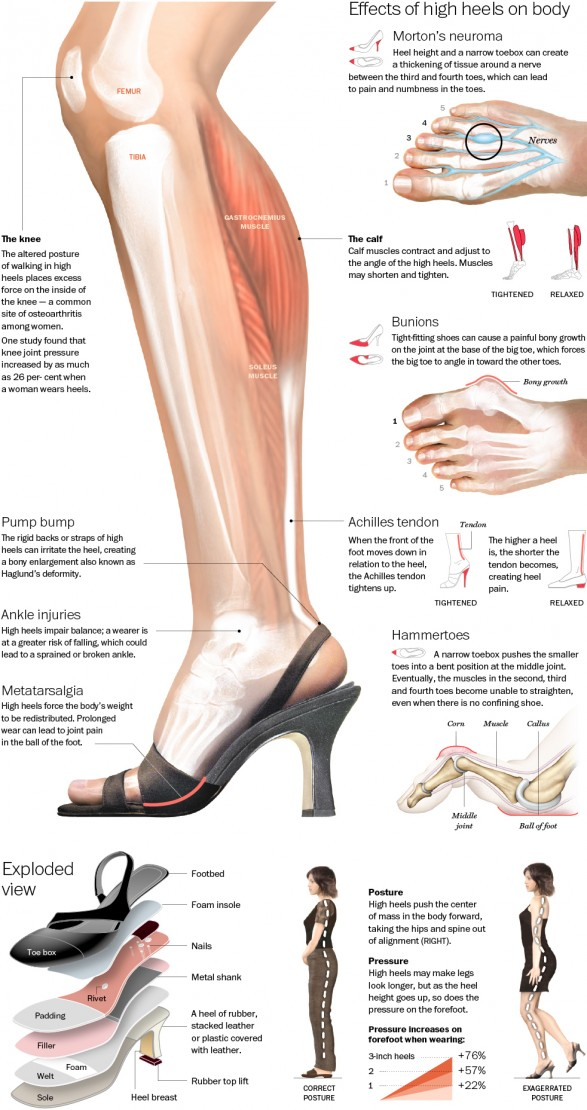 What High Heels Really Do To Your Body